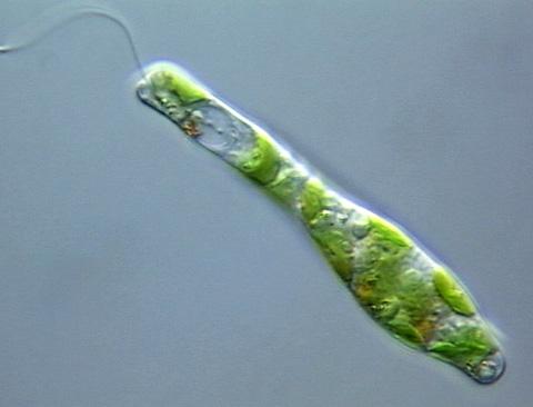 Japaner züchten Algen, Nahrung der Zukunft?