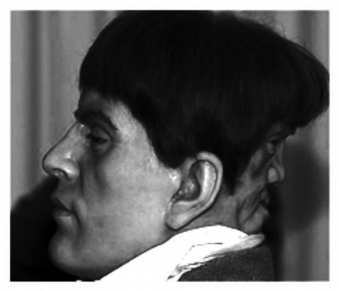 Edward Mordake - Zwei Gesichter teilen einen Kopf!