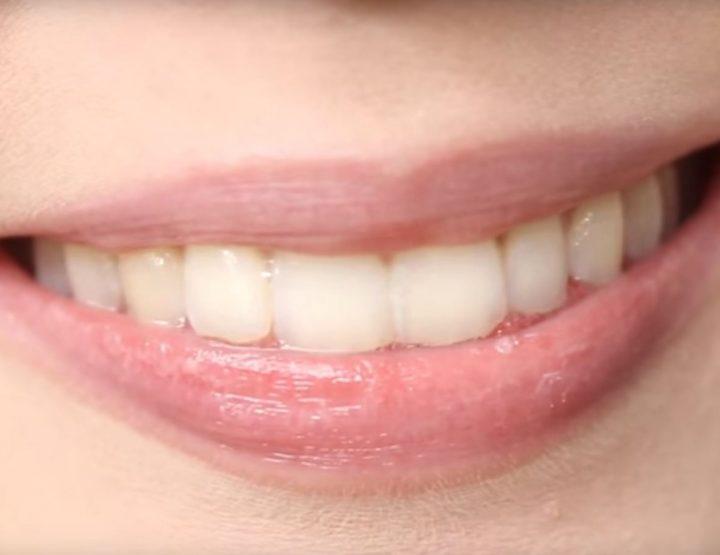 I migliori consiglii di cura di labbra DIY