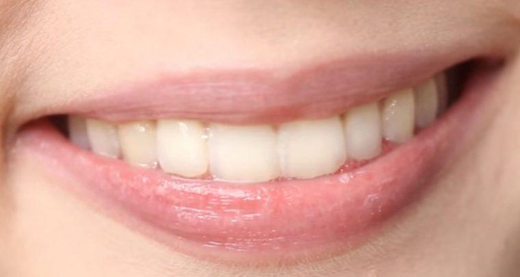Die besten DIY Lippenpflege Tipps