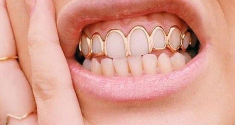 Grills - Schmuck für die Zähne